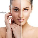 Microdermabrasion Befor and After